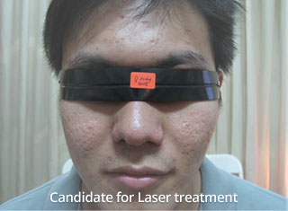 Before Laser treatment